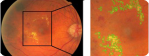 Image processing methods for computer-aided screening of diabetic retinopathy