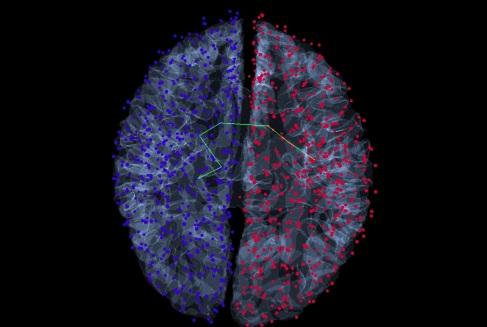 braingraph_brain_w